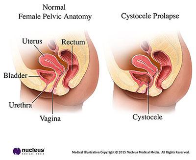Cystocele anatómia ábra, Intimtornához Biofeedback Gátizom tréner, enterococcus sp okozta húgyúti gyulladás, Escherichia coli baktériumok okozta fertőzés, inkontinencia, hólyaghurut,